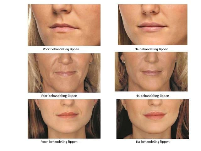 Dit zijn foto`s van voor en na het gebruik van hyaluronzuur.