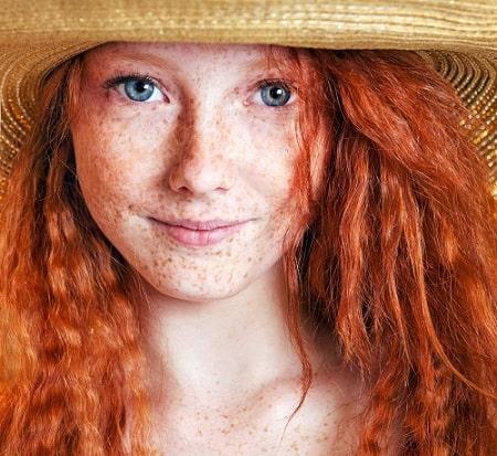 Dit is een foto van een vrouw met veel sproeten in haar gezicht.