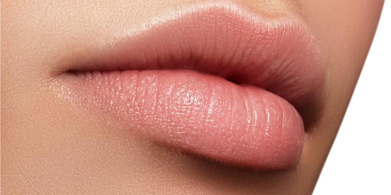 Op deze foto worden lippen afgebeeld die met lip fillers hyaluronzuur zijn behandeld.
