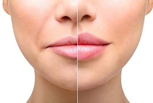 Lip vullers - Fillers toepassen, hyaluron pen, kopen hyaluron, hyaluron goedkoop, de beste hyaluron, greenfiller hyaluron. lippen filler.
