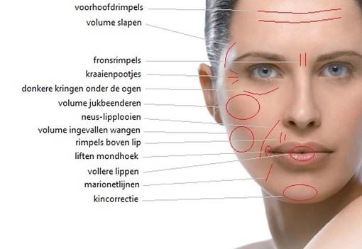 Deze foto geeft aan welke gebieden in het gezicht te behandelen zijn met de hyaluron pen.