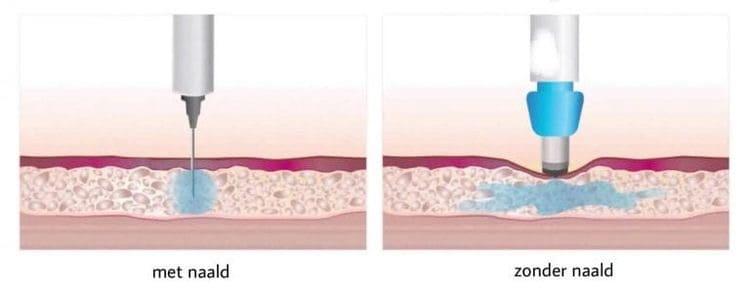 Grafische weergave van de verdeling van hyaluronzuur onder de huid.