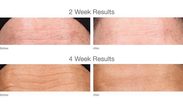 Dit is een foto van voor en na resultaten bij een behandeling met retinol serum. De rimpels op het voorhoofd zijn vermindert.