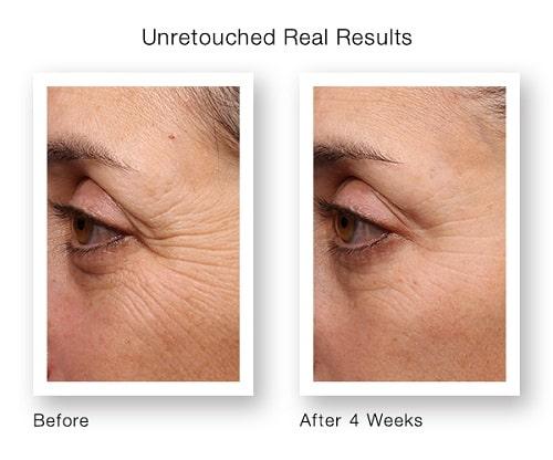 Op deze foto is een vrouw te zien met voor en na resultaten van fijne lijntjes bij de ogen. Zij wordt behandeld met retinol serum.