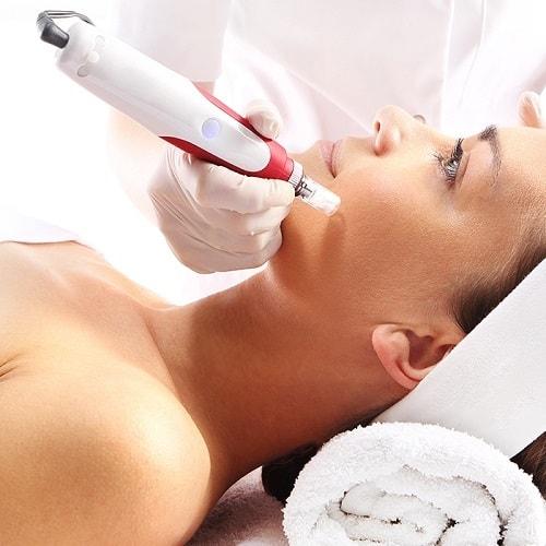 Dit is een foto waar een vrouw behandeld wordt met een beauty microneedling pen.