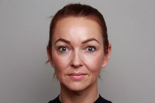 Dit is een foto van een vrouw die last heeft van neusplooien. Zij wil dit behandelen met hyaluronzuur fillers.