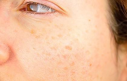 Deze foto laat een vrouw zien met donkere plekjes in haar gezicht ook wel ouderdomsvlekjes genoemd. In het engels noemen we dit dark spots, liver spots.