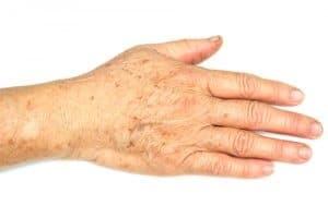 Op deze foto zijn handen te zien met donkere vlekjes ook wel ouderdomsvlekjes genoemd. Het zijn bruine vlekjes op de handen. De Engelse benaming hiervoor is dark spots of liver spots.