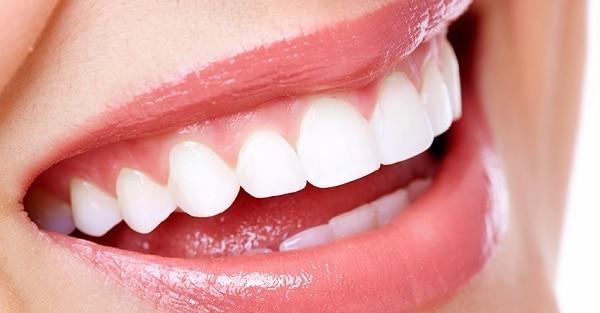 Dit is een foto van een vrouw met prachtige witte tanden.