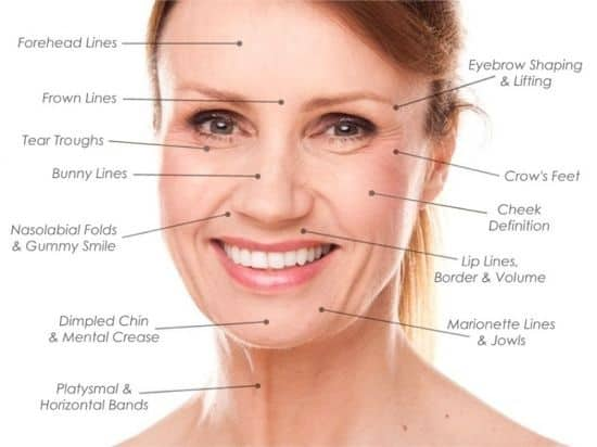 Dit is een foto waar het gezicht van een vrouw wordt afgebeeld met fijne lijntjes.