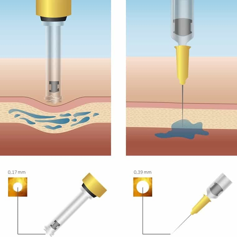 Dit is een foto die werking van een hyaluron pen laat zien. Met een hyaluronpen injecteert men hyaluronzuur in de huid.