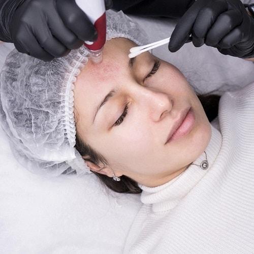 Dermapen behandeling microneedling dermarolling