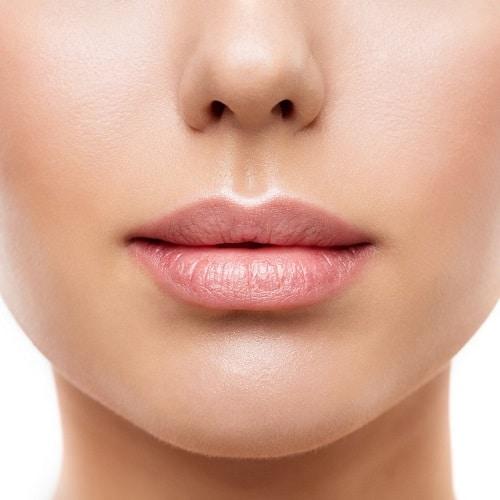 Vrouw laat lippen zien die behandeld zijn met Fillers