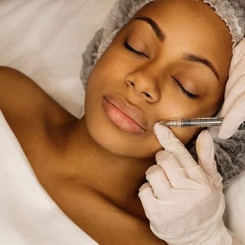 Deze vrouw krijgt een lip behandeling met fillers hyaluronzuur.