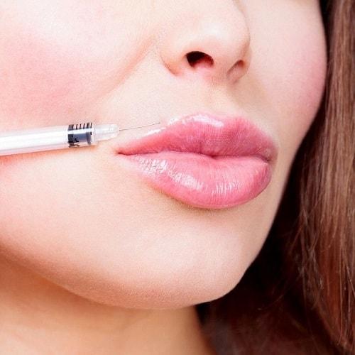 Deze vrouw laat zien hoe een lip filler behandeling er uitziet.