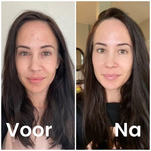 Deze vrouw behandeld haar gezicht met vitamine c serum 30ml. De foto geeft het resultaat van voor en na de behandeling.
