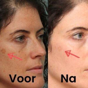 Deze vrouw behandeld haar gezicht met Retinol serum 30 ml. Dit doet zij om haar huid tegen zonbeschadiging te beschermen.
