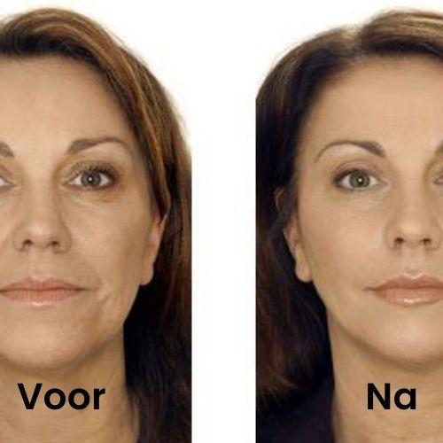 Deze vrouw behandeld zichzelf met hyaluronzuur serum 30 ml. U ziet de resultaten van voor de behandeling en na.