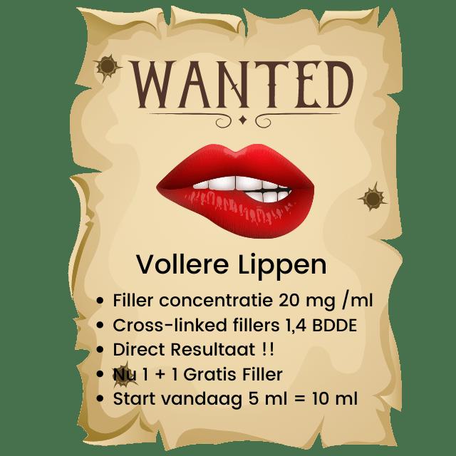Lijst met de voordelen van lip fillers