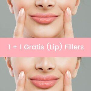 Lip Fillers - Lip Vullers Lip Fillers Voor en Na