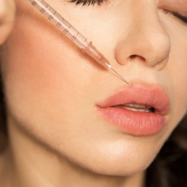 Lip vullers 1 ml hyaluronzuur - Lip fillers 1 ml